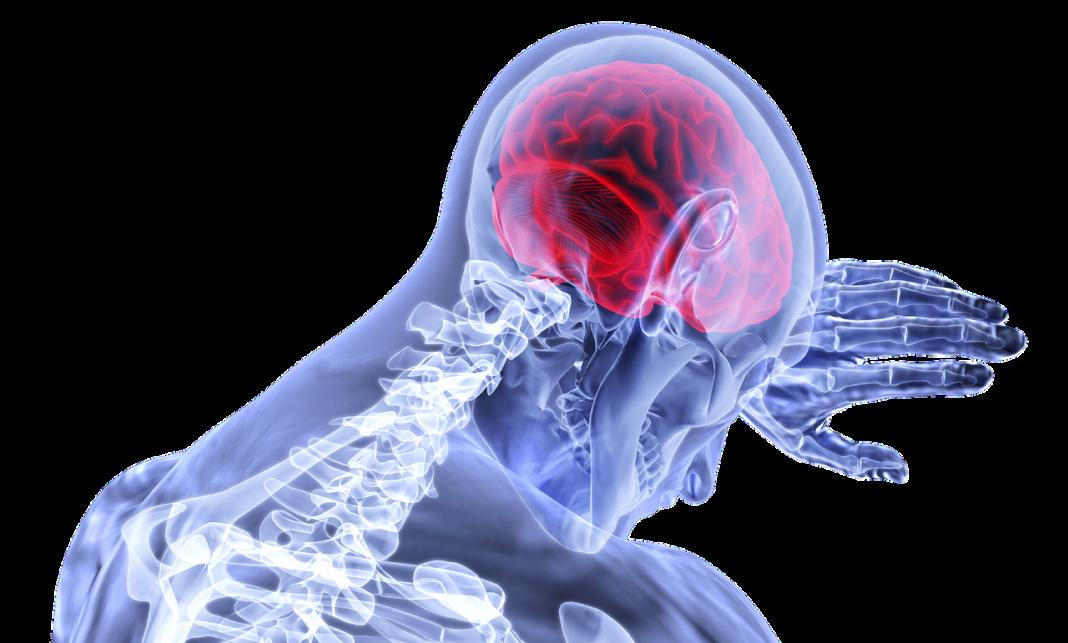 Neurocovid