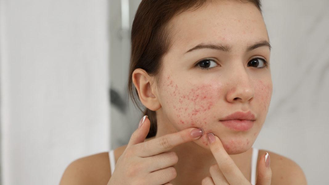 Consigli per curare l'acne